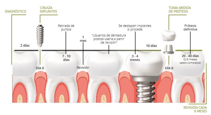 colocar implante